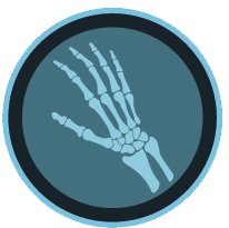 hand wrist stem cell therapy denver