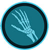 hand-wrist-stem-cell-therapy-denver